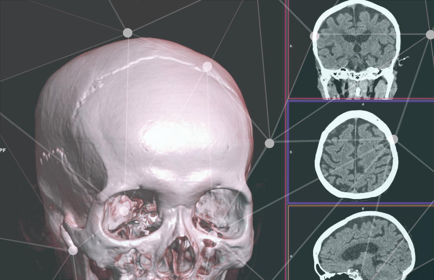 КТ органов лицевого черепа
