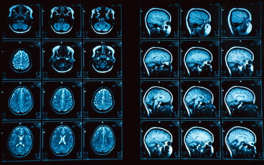 Сделать КТ мозга