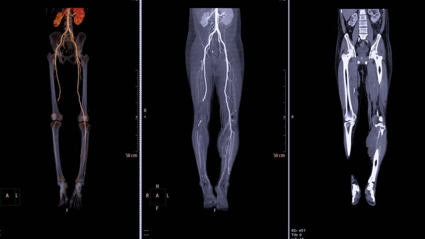 Обследования при болезнях сосудов и вен ног: преимущества КТ перед УЗИ